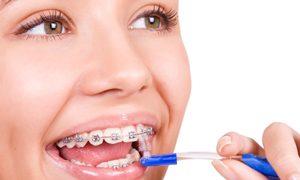ortodoncia6